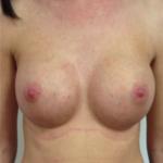 Brustvergrösserung (Runde Implantate) Before & After Patient #1199