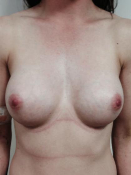 Brustvergrösserung (Runde Implantate) Before & After Patient #1187