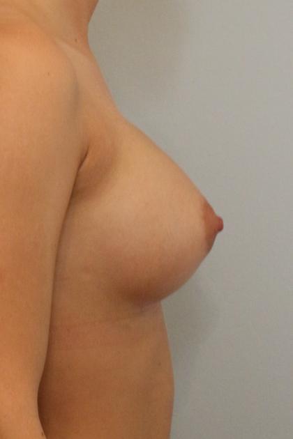 Brustvergrösserung (Runde Implantate) Before & After Patient #1204