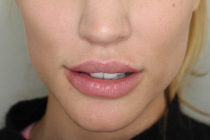 Lippenmodellierung Before & After Patient #1228