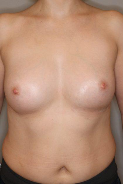 Brustvergrösserung (Eigenfetttransfer) Before & After Patient #1176