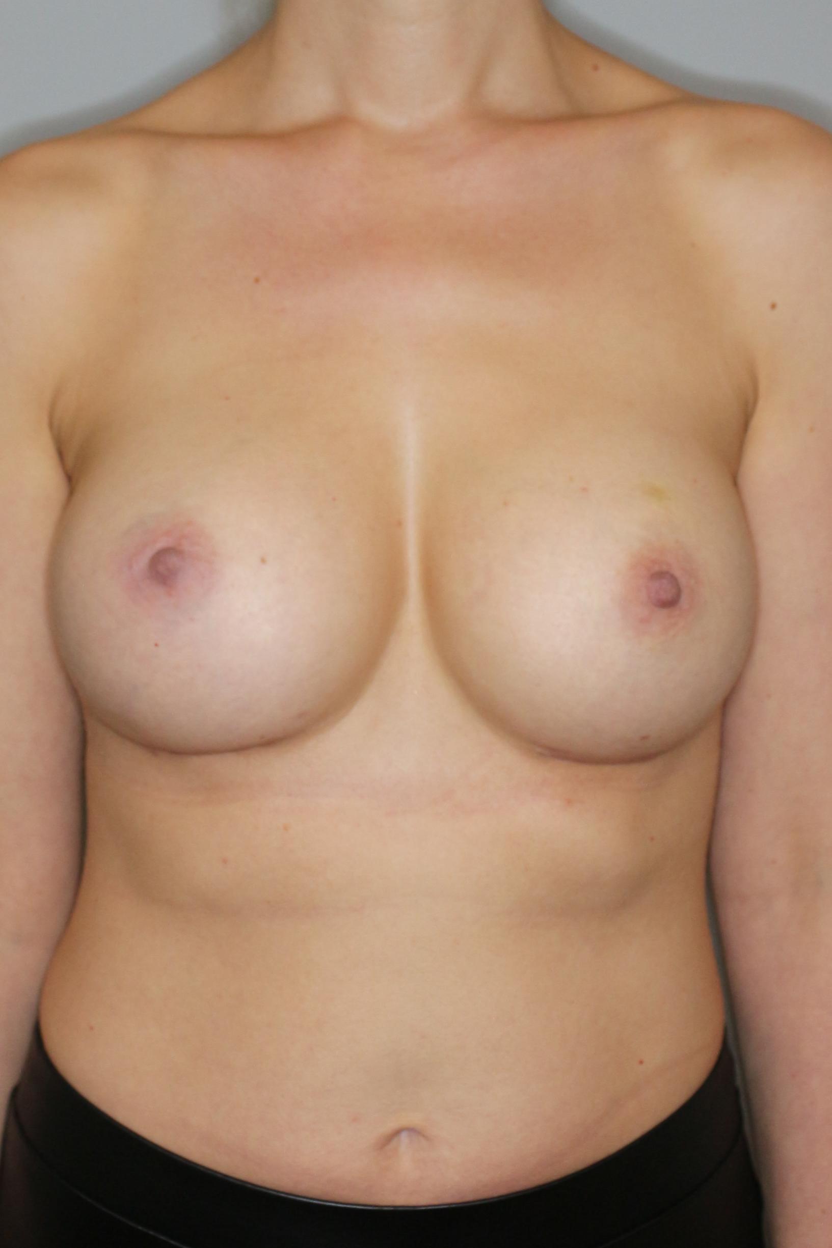 Brustvergrösserung (Runde Implantate) Before & After Patient #1219