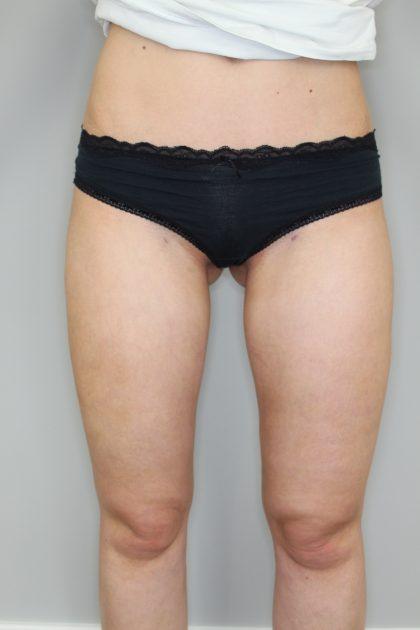 Fettabsaugung Before & After Patient #1241