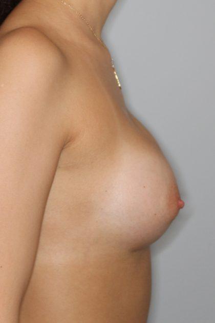 Brustvergrösserung (Runde Implantate) Before & After Patient #1211
