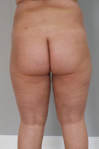Fettabsaugung Before & After Patient #1246