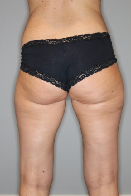 Fettabsaugung Before & After Patient #1236