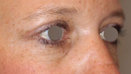 Augenlidstraffung Before & After Patient #1114