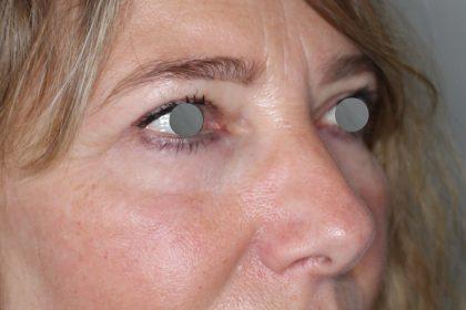 Augenlidstraffung Before & After Patient #1121