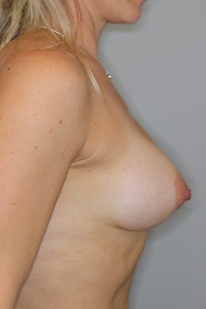 Brustvergrösserung (Anatomische Implantate) Before & After Patient #1128