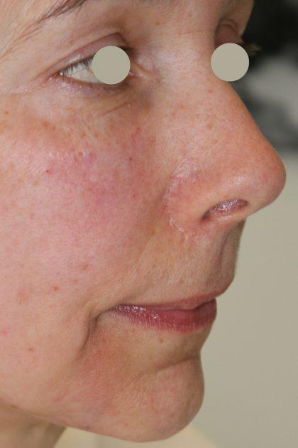 Augenlid- und Wangenmodellierung Before & After Patient #1458