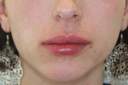 Lippenmodellierung Before & After Patient #1433