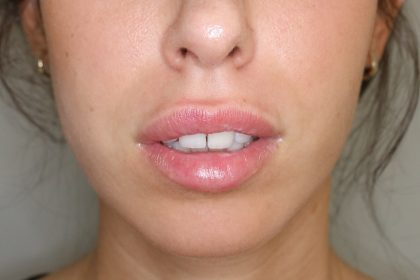 Lippenmodellierung Before & After Patient #1430