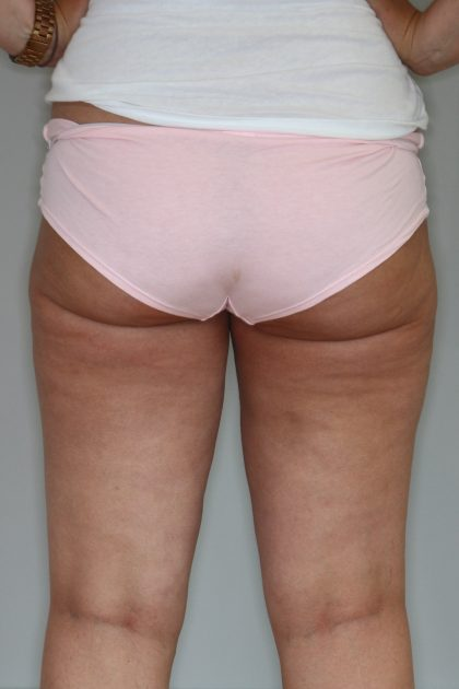Fettabsaugung Before & After Patient #1488