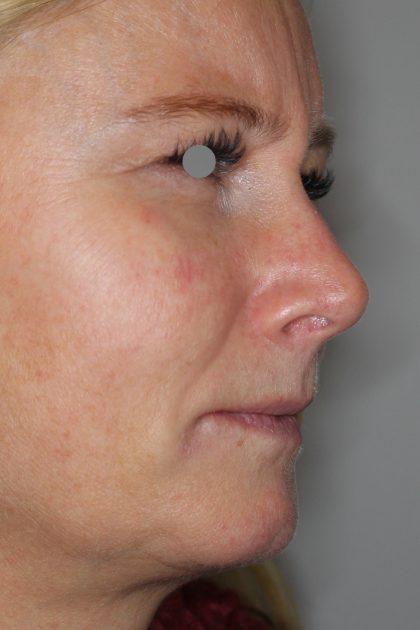 Augenlid- und Wangenmodellierung Before & After Patient #1446