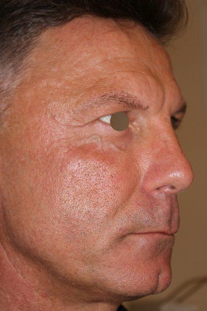Hautunterspritzungen Before & After Patient #1409