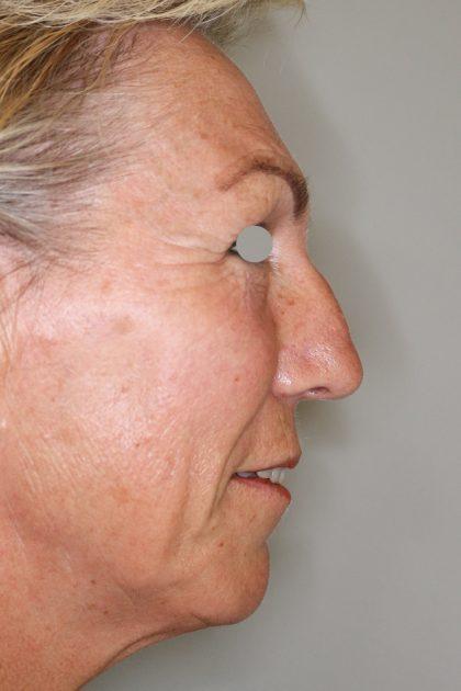 Hautunterspritzungen Before & After Patient #1397