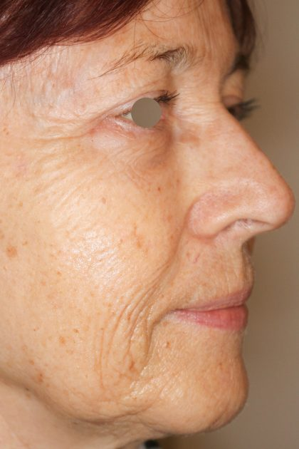 Hautunterspritzungen Before & After Patient #1394