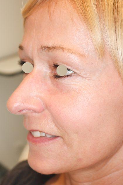 Hautunterspritzungen Before & After Patient #1388