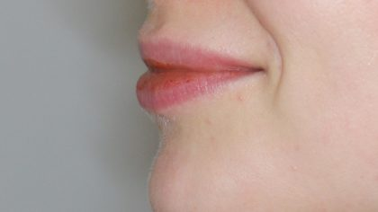 Lippenmodellierung Before & After Patient #1421