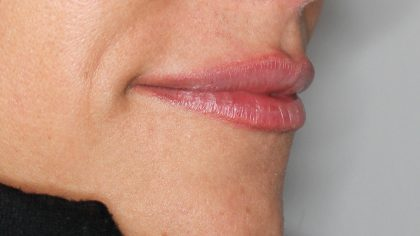 Lippenmodellierung Before & After Patient #1418