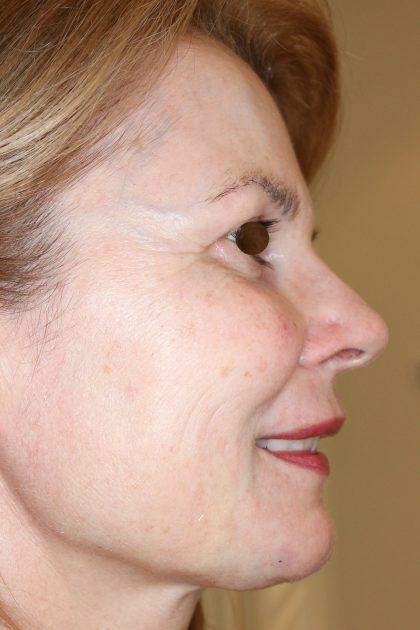 Hautunterspritzungen Before & After Patient #1403
