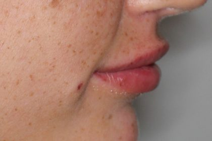 Lippenmodellierung Before & After Patient #1436