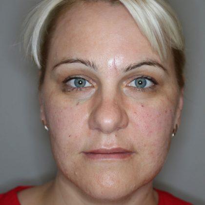 Hautunterspritzungen Before & After Patient #1452