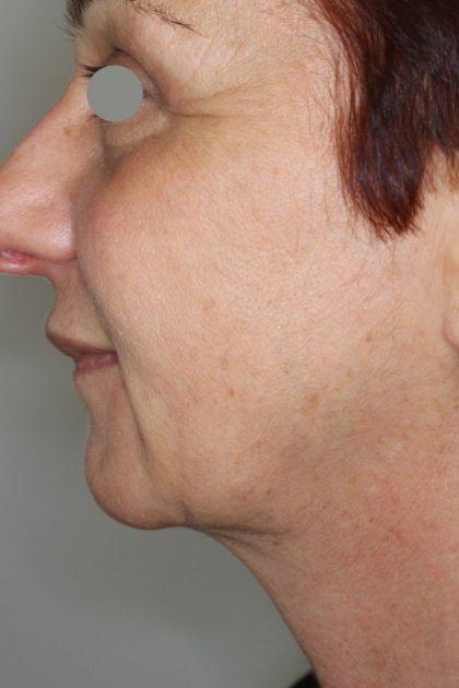 Halsstraffung Before & After Patient #1592