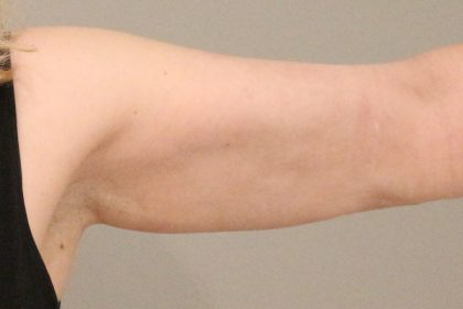 Fettabsaugung Before & After Patient #1497