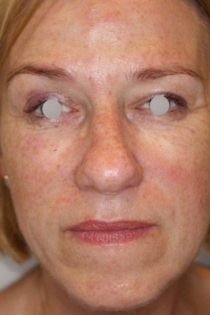 Augenlid- und Wangenmodellierung Before & After Patient #1449