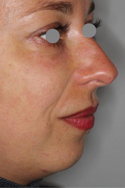 Augenlid- und Wangenmodellierung Before & After Patient #1442