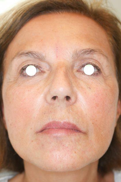 Hautunterspritzungen Before & After Patient #1400