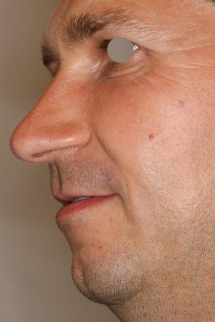 Augenlid- und Wangenmodellierung Before & After Patient #1461