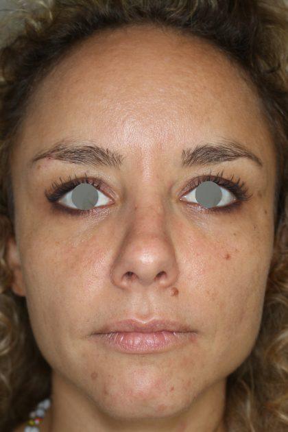 Augenlid- und Wangenmodellierung Before & After Patient #1439