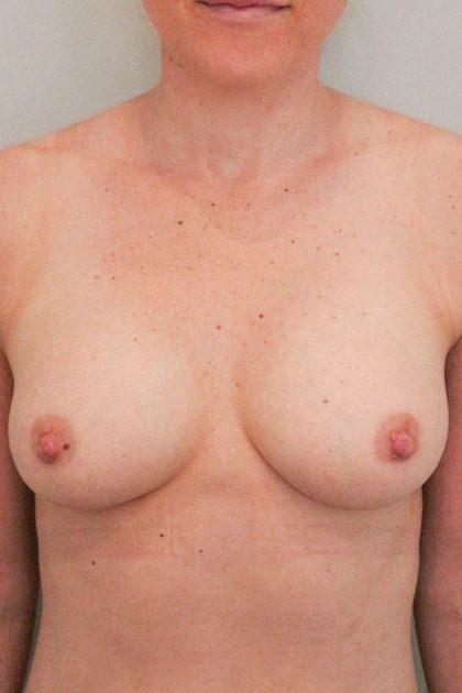 Brustvergrösserung (Eigenfetttransfer) Before & After Patient #1636