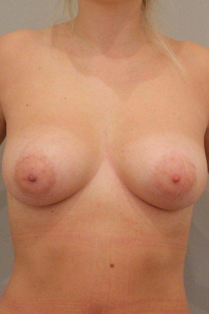Brustvergrösserung (Eigenfetttransfer) Before & After Patient #2054