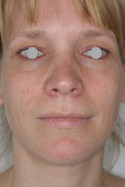 Hautunterspritzungen Before & After Patient #2092