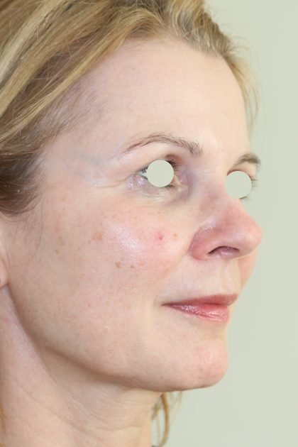 Hautunterspritzungen Before & After Patient #2088