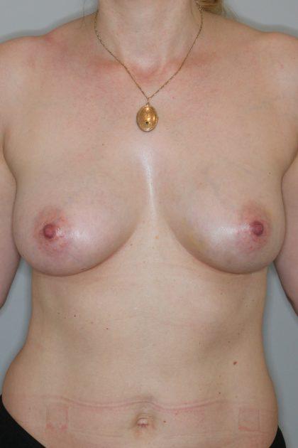 Brustvergrösserung (Eigenfetttransfer) Before & After Patient #2053