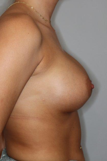 Brustvergrösserung (Runde Implantate) Before & After Patient #2058