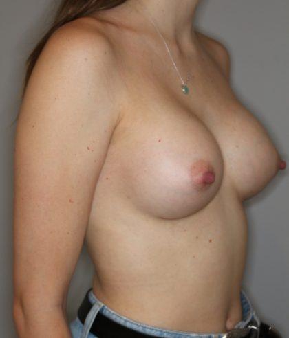 Brustvergrösserung (Runde Implantate) Before & After Patient #2200