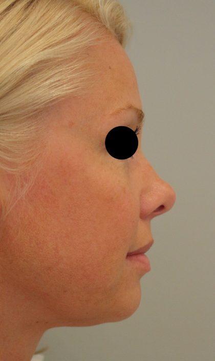Hautunterspritzungen Before & After Patient #2238