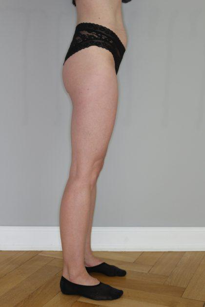 Fettabsaugung Before & After Patient #2233