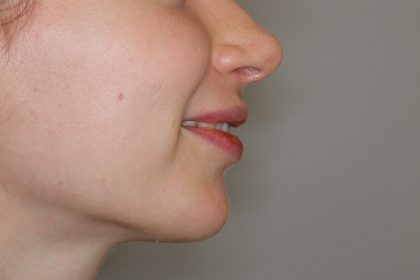 Lippenmodellierung Before & After Patient #2257
