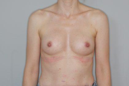 Brustvergrösserung (Eigenfetttransfer) Before & After Patient #2196